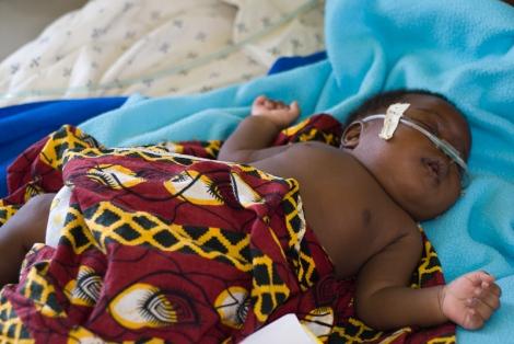 Momitforward World_Pneumonia_Day-Malawi-1995