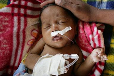 UNICEF Pneumonia